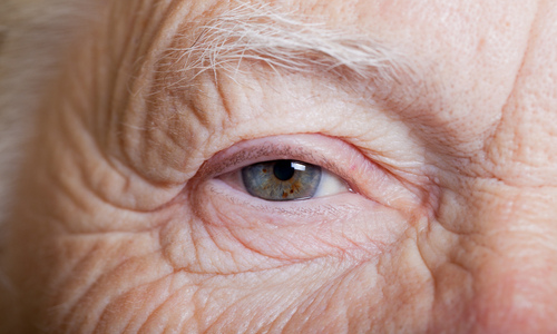 Aging eye of an older man