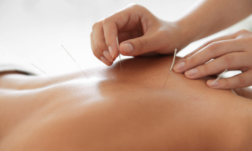 Man with acupuncture needles in back