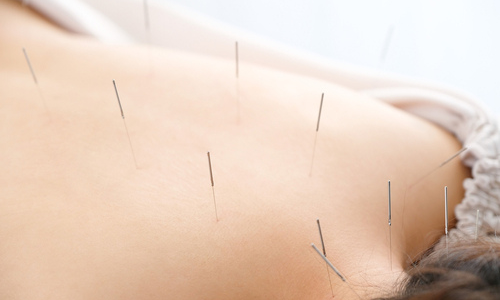 Woman getting acupuncture in her back