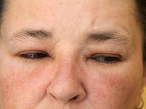 Close up image of swollen eyelids.