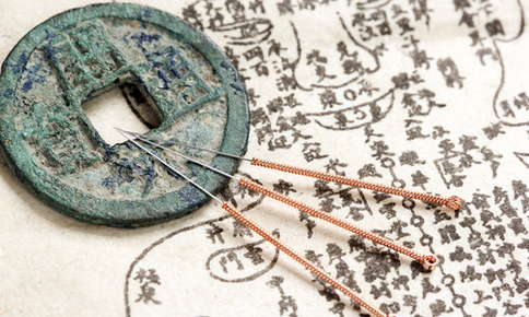 Acupuncture needles and Chinese symbols