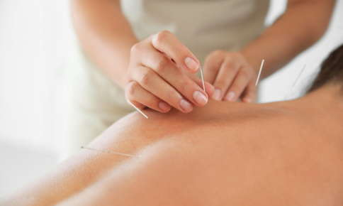 Woman receiving acupuncture treatment for chronic pain