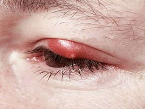 Image of a large red bump on an eyelid.