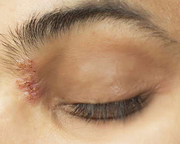 skin lesion on eye area