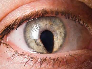 eye with abnormal iris shape