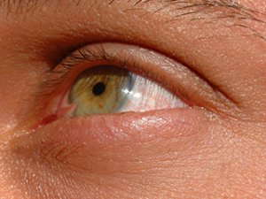 pink tissue growth on left eye