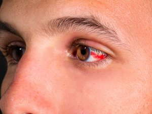 Image of an occlusion causing redness in eyes.