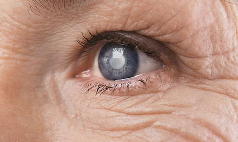 Older woman with glaucoma