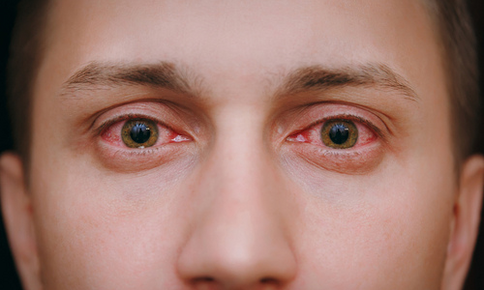 Man suffering from an eye cold
