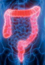 Why is bowel prep important?