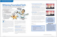 Whitening Traumatized Teeth - Dear Doctor Magazine