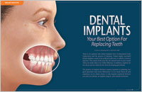 Dental Implants - Dear Doctor Magazine