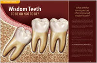 Wisdom Teeth - Dear Doctor Magazine