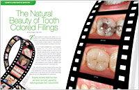 Tooth-Colored Fillings - Dear Doctor Magazine