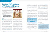 Periodontal Disease - Dear Doctor Magazine