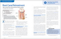 Root Canal Retreatment - Dear Doctor Magazine