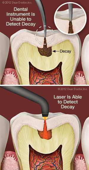 Laser decay diagnosis.