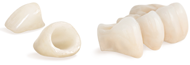 Dental Crowns and Bridgework.