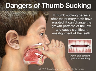 Dangers of Thumb Sucking.