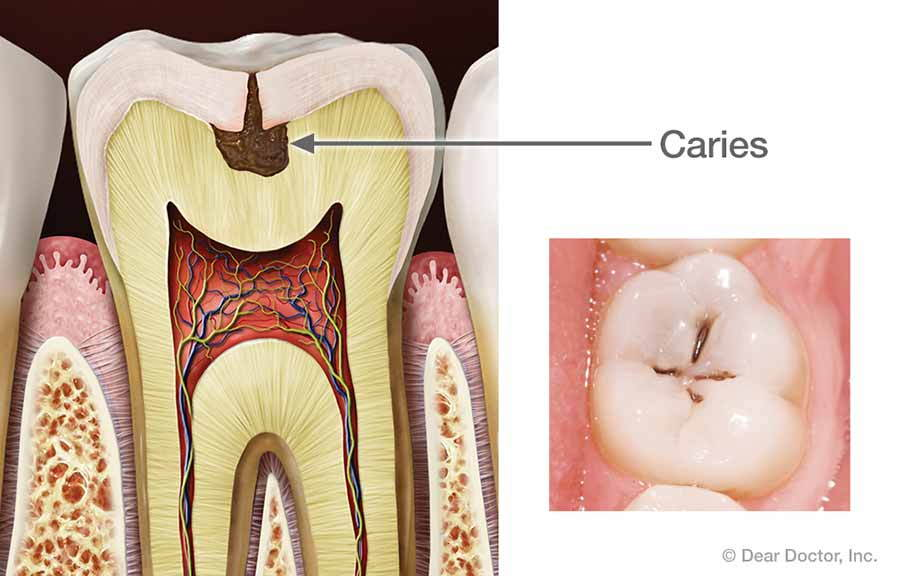 Caries.