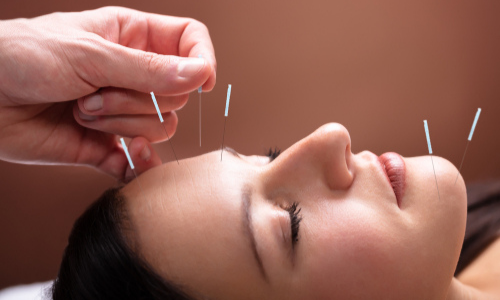Woman getting acupuncture treatment in face