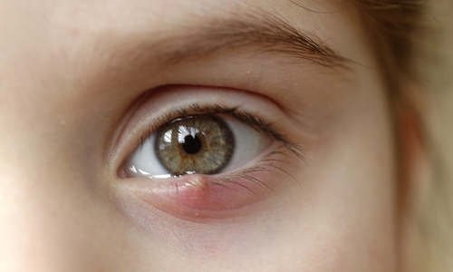 A child with a stye on the lower eyelid