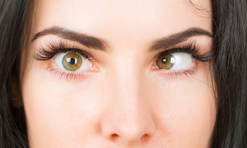 Woman with strabismus