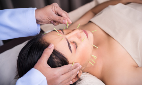 Woman getting acupuncture in her forehead