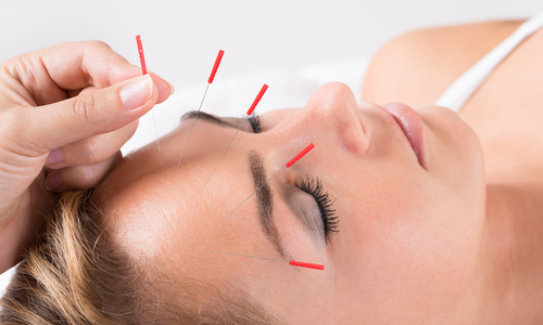 Woman getting acupuncture facial treatment