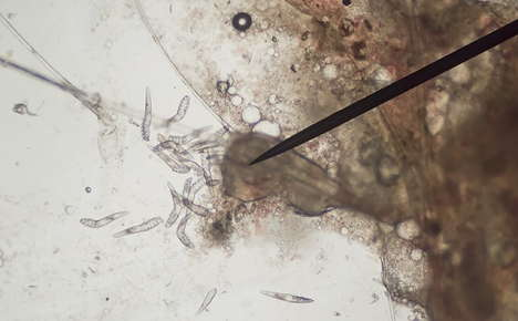 Close up image of parasites.