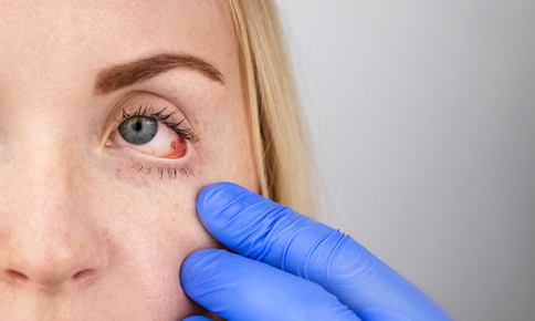 Woman having red eye checked by eye doctor
