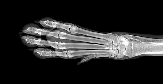 X-ray of a paw.