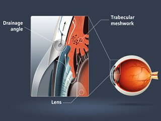 Cartoon image of glaucoma.