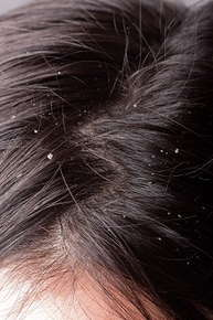 Close up image of a dry scalp.