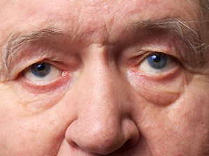 Close up image of an elderly man's face.
