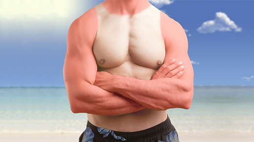 Image of a man's chest with a tank top, sunburn.