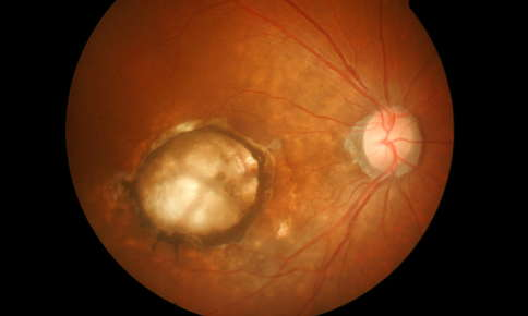 Image of an eye with age-related macular degeneration