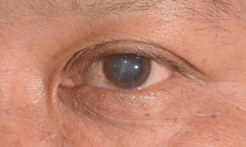 An older man with cataracts