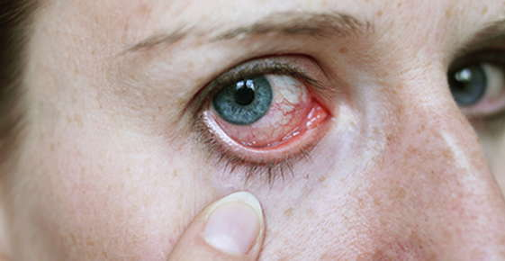 Image of a swollen eye.