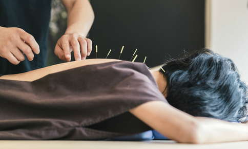 Woman receiving acupuncture treatment.