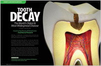Tooth Decay - Dear Doctor Magazine