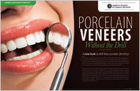 No-prep Procelain Veneers - Dear Doctor Magazine