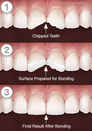 Tooth Bonding - Step by Step.