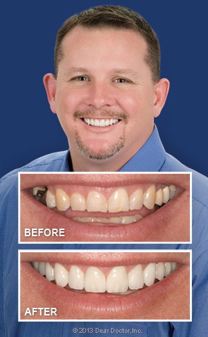 Before and After Smile Makeover.