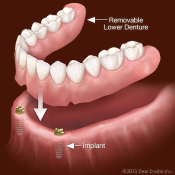 Implant-Supported Overdenture.
