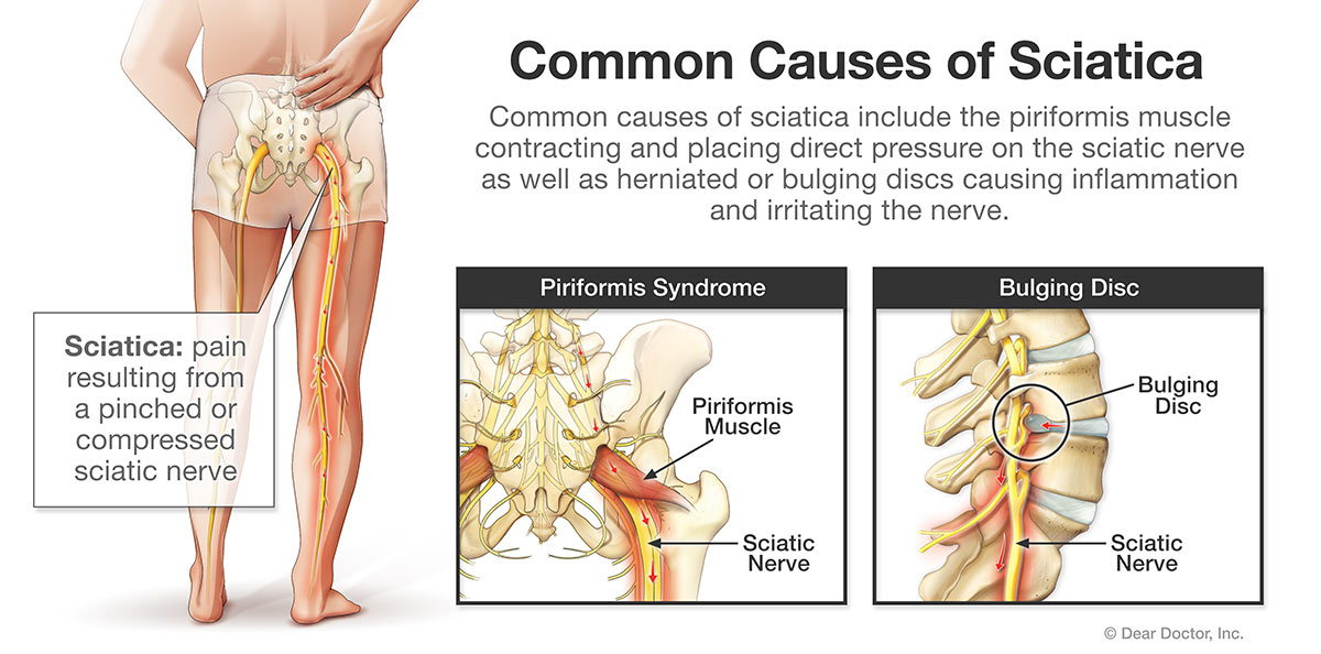 Common causes of sciatica.