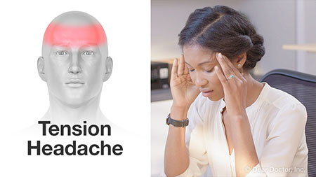Tension headache.