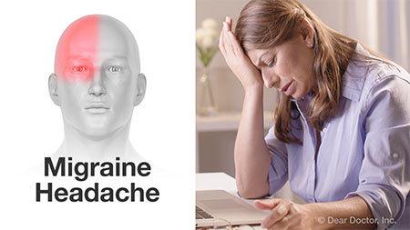 Migraine headache.