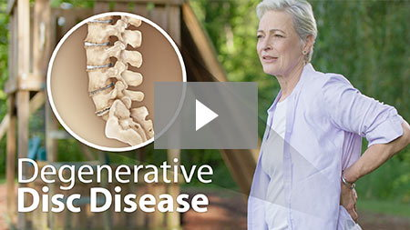 Degenerative disc disease.