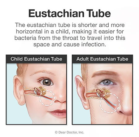 Eustachian tube - adult vs child.